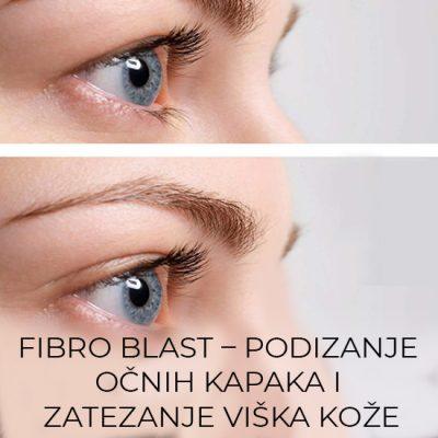 Relax-time-studio-Kragujevac-Fibro-blast-podizanje-ocnih-kapaka-i-zatezanje-viska-koze